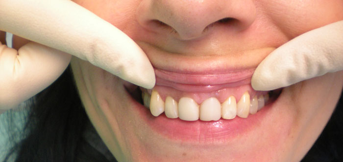 Ультразвуковая чистка зубов ультразвуком Киев цена ЛюмиДент