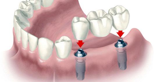 Технологии отбеливания зубов